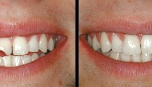 How to Repair Chipped or Broken Teeth
